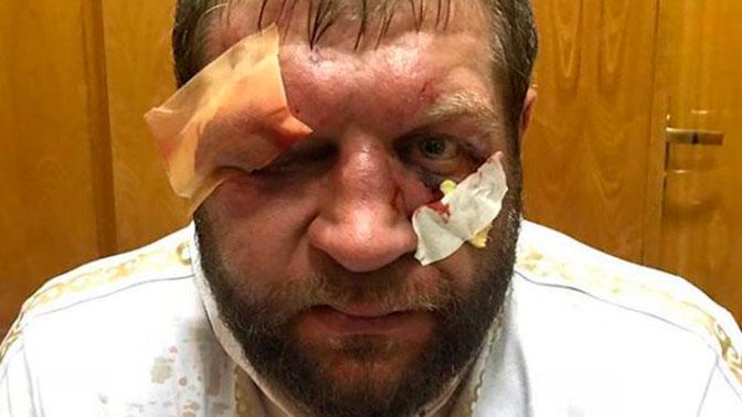 Емельяненко показал обезображенное после боя лицо