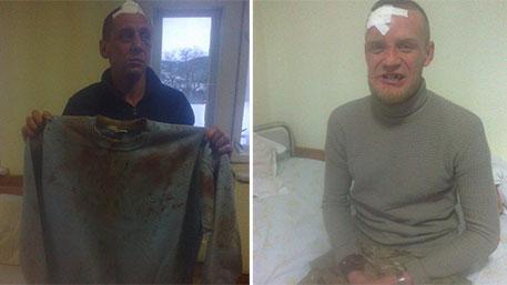 Жители Закарпатья расправились с боевиками нацбатальона «Донбасс»
