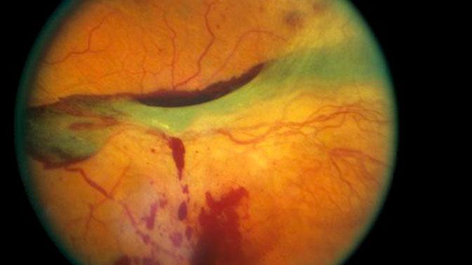 Нейросеть Google сможет определять болезни сердца по сетчатке глаза