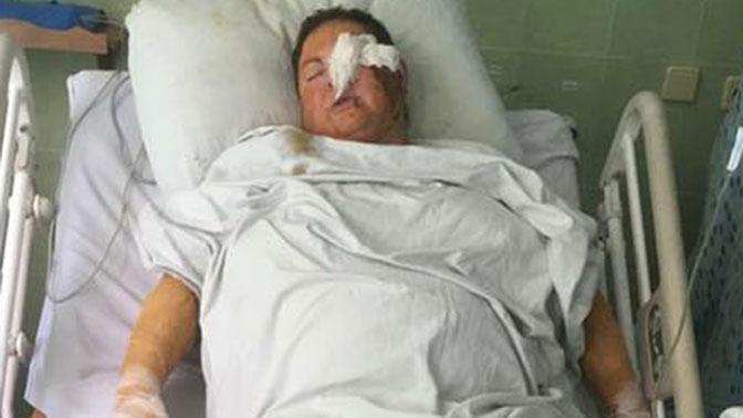 Порошенко дал поручение найти и наказать убийц облитой кислотой чиновницы