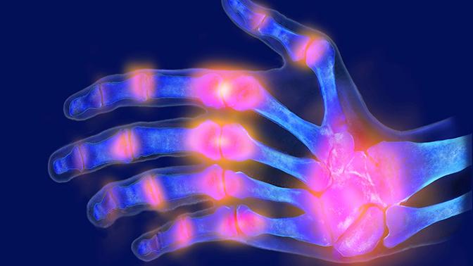 Врачи назвали основные симптомы подагры