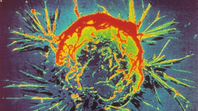 Ученые рассказали, как «разбитое сердце» связано с раком