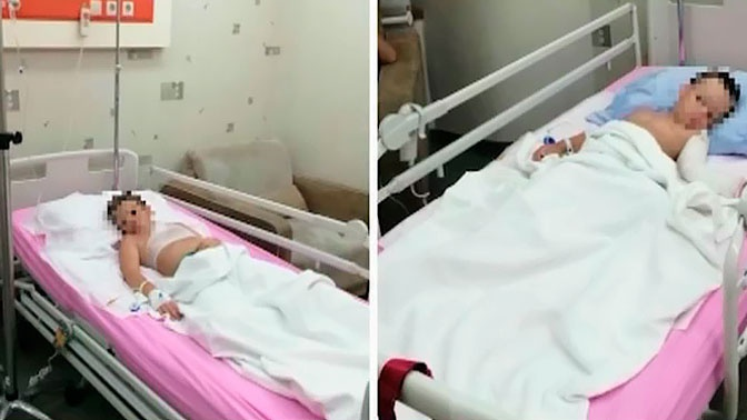 Медики рассказали о состоянии детей, которых облили горящим маслом в Турции