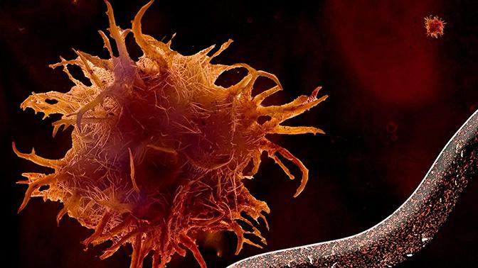 Ученые выяснили, что может спасти от рака