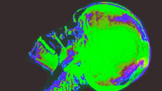 В черепе человека нашли золотое сечение