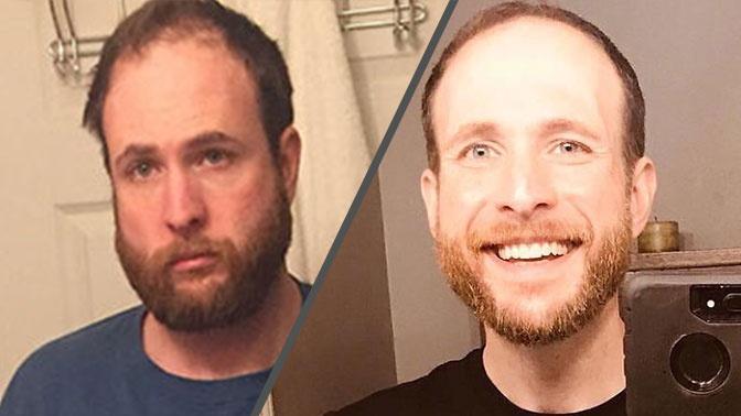 Американец показал чудесное преображение после отказа от алкоголя