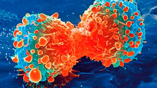 Ученые назвали настоящую причину возникновения рака